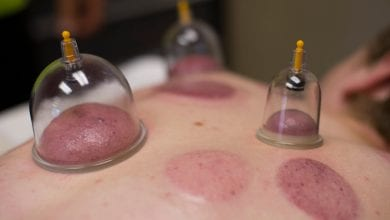 5 benefits to cupping