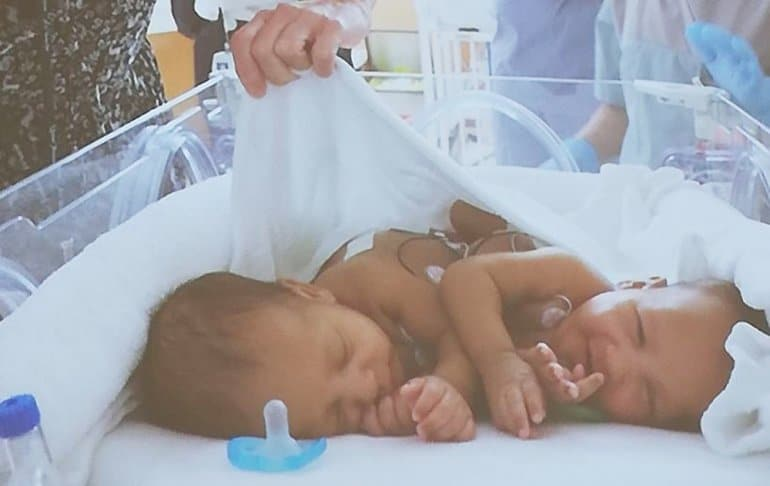 Sidra successfully separates conjoined twins